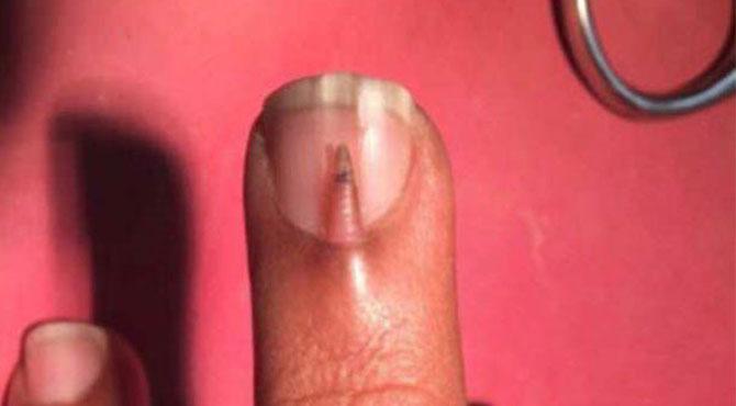 دہرے ناخن والے پاکستانی شہری کا نایاب طبی کیس