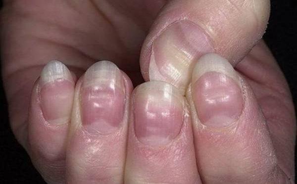 ناخنوں کی سا خت سے آپ کی شخصیت کا پتہ کیسے چلیگا ،کو ن کو نسی بیماریاں ہیں،دلچسپ خبر