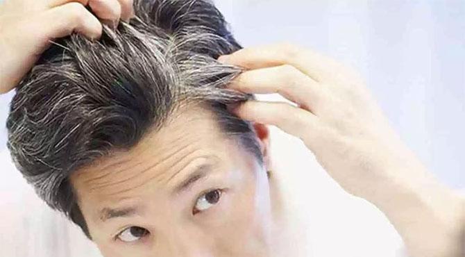 بالوں کی قبل از وقت سفیدی دور کرنے والے ٹوٹکے