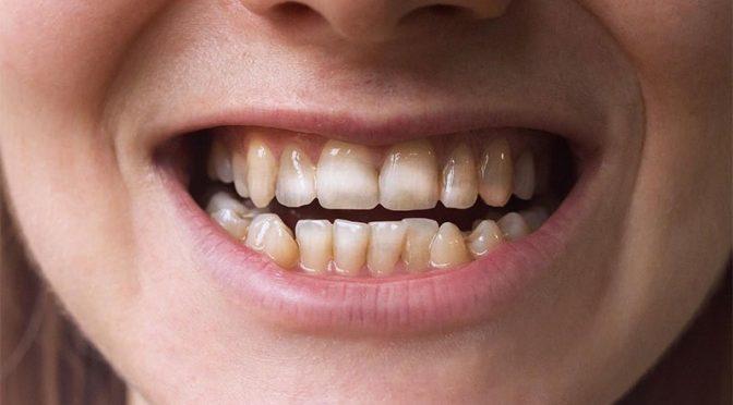 دانتوں پر ایسے نشانات اس مرض کی نشانی ہوسکتی ہے