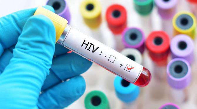 سندھ میں ایچ آئی وی کیسے پھیلا،تحقیقات کی تجویز
