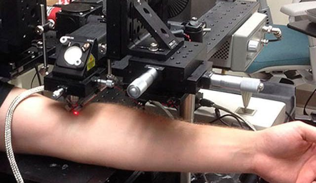 گردش کرتے خون سے سرطانی خلیات ختم کرنے والی لیزر