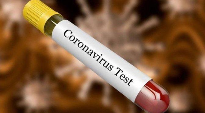 خیبرپختونخوا میں کورونا وائرس کے مزید 4 مشتبہ کیسز کلیئر قرار دے دئیے گئے۔
